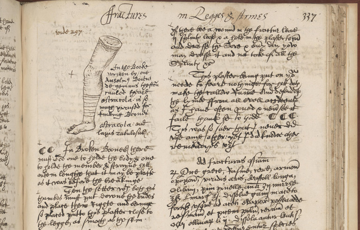 Image of leg in manuscript