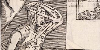Plastic surgery 1597 image.
