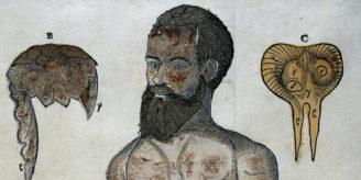 Anatomical image, 1573.