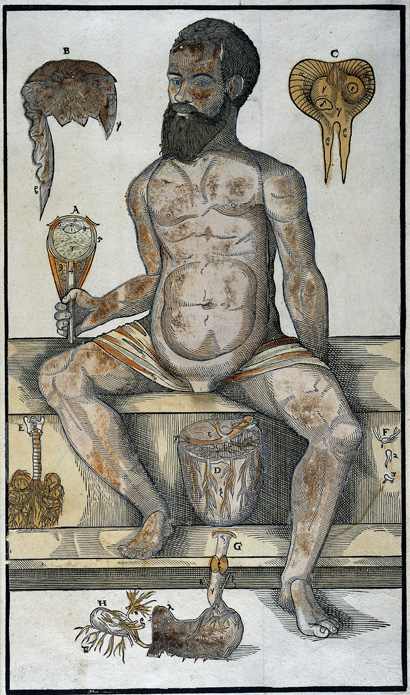 Printed sheet of male figure with flaps, 1573.