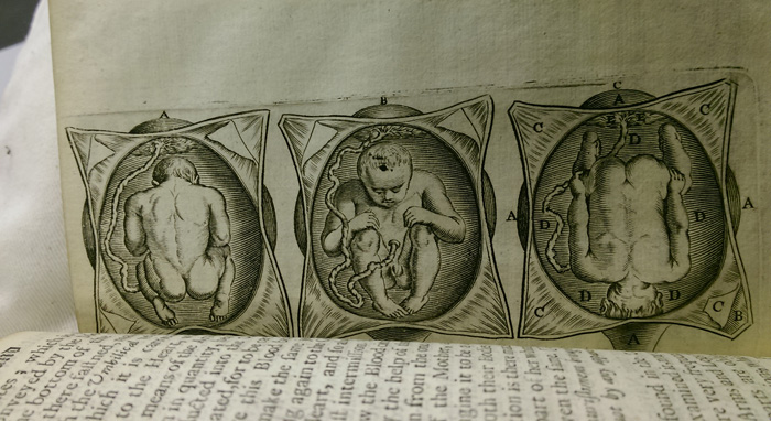 Image from midwifery book.