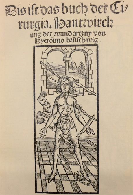 Wound man in 1497 book.