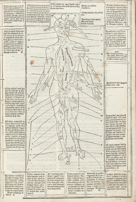 Wound man in 1495 printed book.