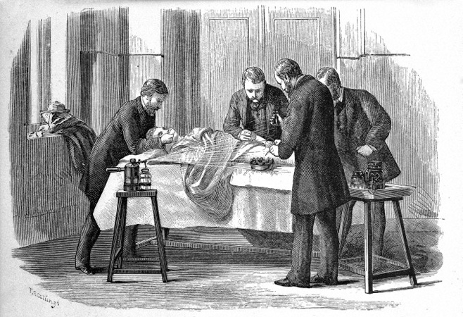 Use of Lister carbolic spray in surgery, 1882.