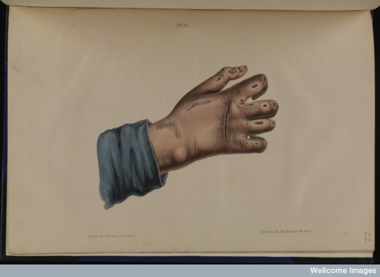 """Anaesthetic leprosy of the hand, from """"Om Spedalskhed: Atlas,"""" by D.C. Danielssen, Johan Ludvig Losting, and Wilhelm Boeck, 1847. Wellcome Images ref. L0074861."""