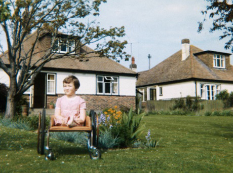 Photograph of girl with thalidomide