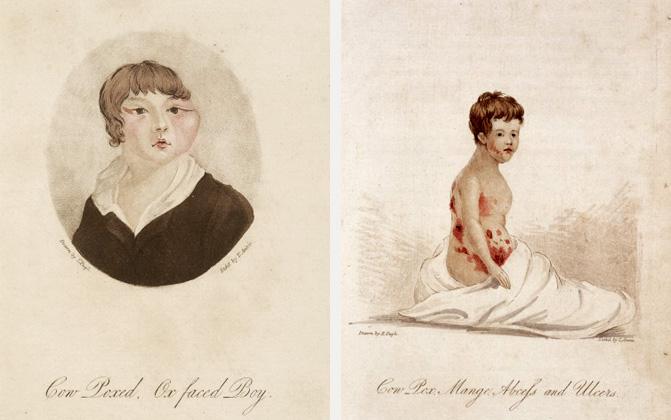 Cowpox incoculation patients