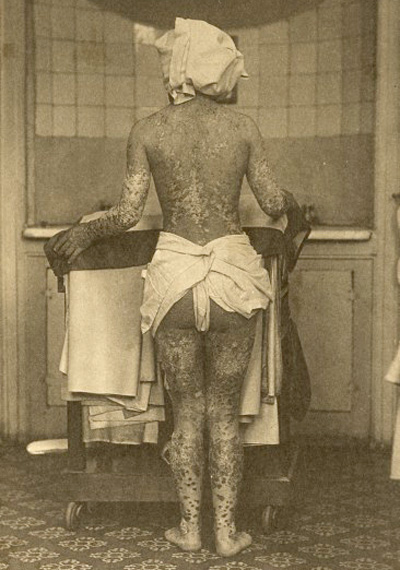 Rupia patient
