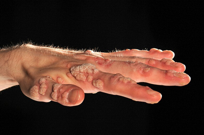 Viral warts on the hand of a young man