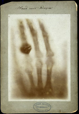 X-ray of the bones of a hand with a ring on one finge. Wellcome Images No. V0029523.