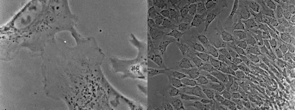 Title and stills from  the movie Cells in Culture. Middle panel shows two chick heart fibroblasts undergoing the process of contact inhibition of locomotion (a cessation of movement upon migratory collision), which Abercrombie hypothesized to play a role in cancer metastasis when dysregulated. Right panel shows the 'monolayering' of fibroblasts; the formation of this even distribution of cells in culture was also thought to be controlled by contact inhibition. Wellcome Library reference:
