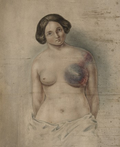 Woman suffering from cancer of the left breast Credit: St Bartholomew's Hospital Archives & Museum. Wellcome Image no. L0061346