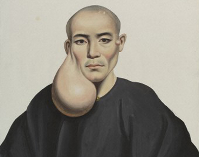 A man with a pendent tumour below his right ear. Gouache. Wellcome Image no. L0037322