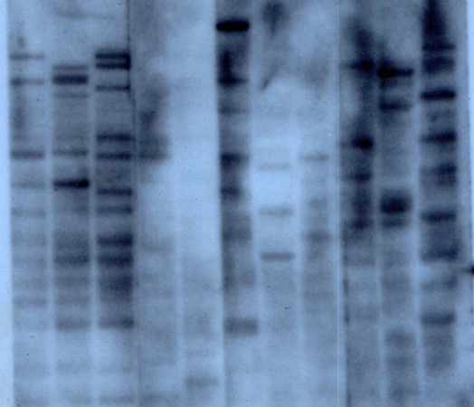 The first DNA fingerprint, autoradiograph, 1984. Wellcome Images B0005956