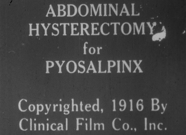 "Film title page for ""Abdominal Hysterectomy for Pyosalpinx"