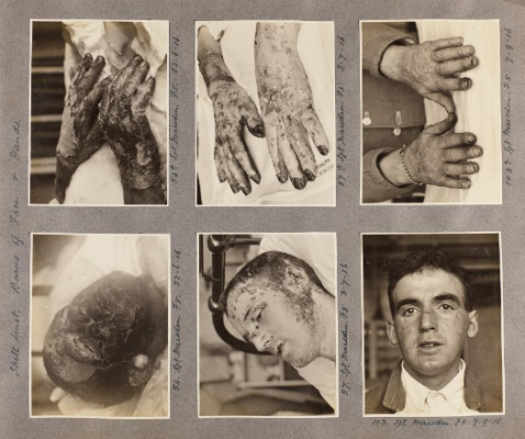 Burns of face and hands. RAMC/760, album of photographs of plastic surgery cases at the King George Military Hospital