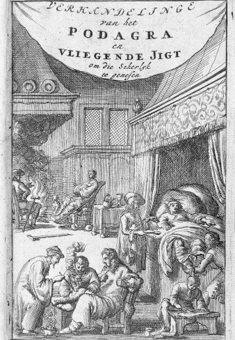 L0006650 Engraving: gout patients being treated. Credit: Wellcome Library, London. Wellcome Images images@wellcome.ac.uk http://wellcomeimages.org Gout treatment Engraving 1684 Verhandelinge van het Podagra Blankaart, Stephen Published: 1684 Copyrighted work available under Creative Commons Attribution only licence CC BY 4.0 http://creativecommons.org/licenses/by/4.0/