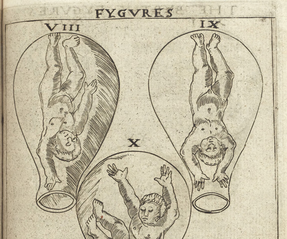 Birth figure from 16th century book.