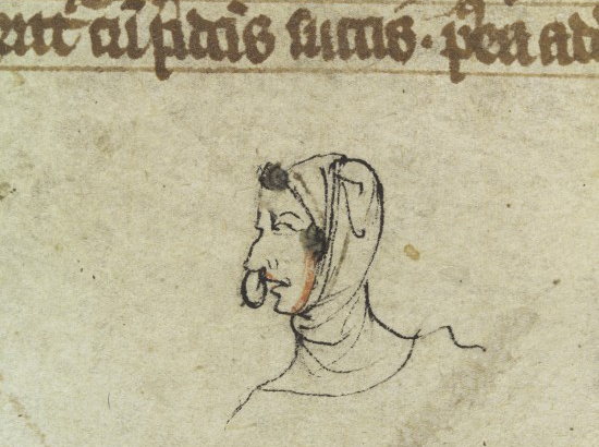 Small drawing in margin of manuscript showing the head of a man with nasal polyps protruding from his nose. Wellcome Library reference: MS 544.