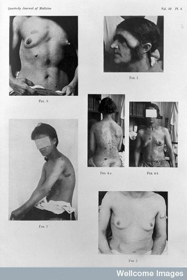 Images of Recklinghausen's disease