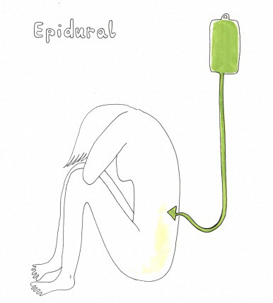 Epidural anaesthesia, artwork Credit: Mary Rouncefield.