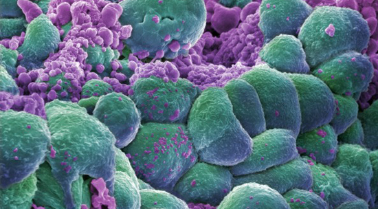 B0006421 Breast cancer cells Credit: Annie Cavanagh. Scanning electron micrograph 2006. WI no.