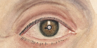 L0062897 Melanoma of the iris