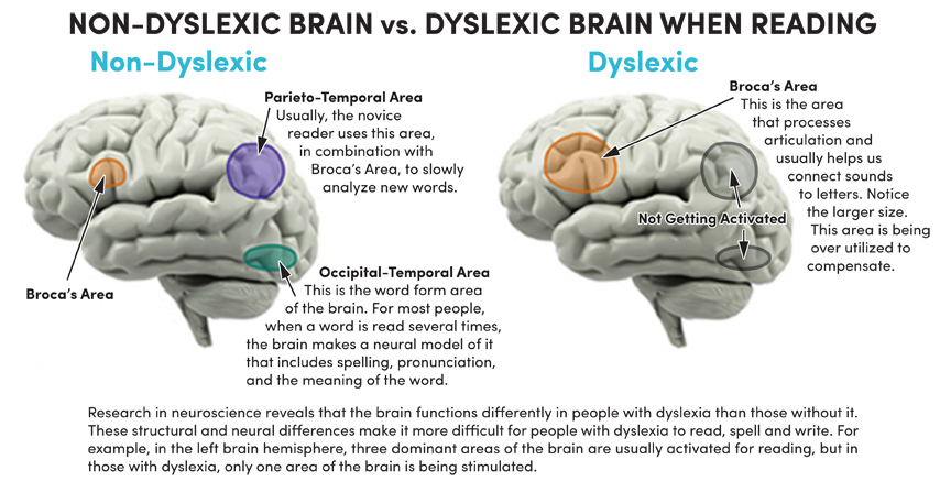 Non-Dyslexic Brain vs. Dyslexic Brain when Reading