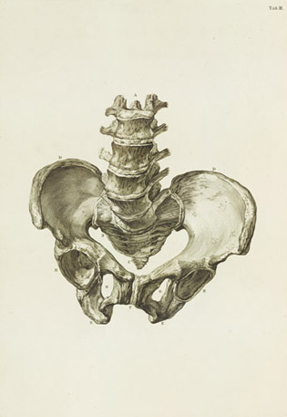 Female Pelvic Bones Affected By Rickets Smellie Anatomy Of Gender